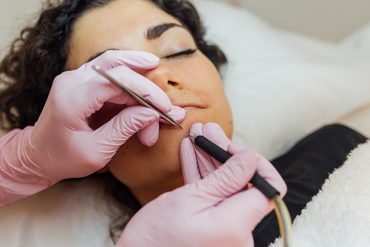 Electrodepilación facial 10
