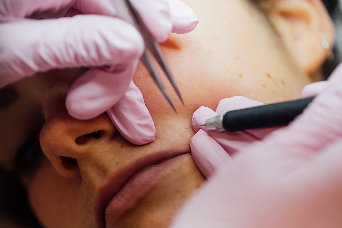 Electrodepilación facial 9