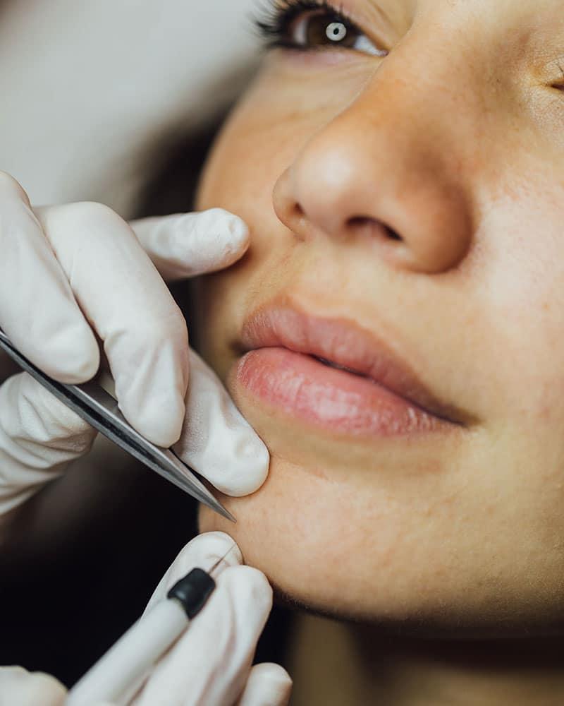 Electrodepilación facial 1