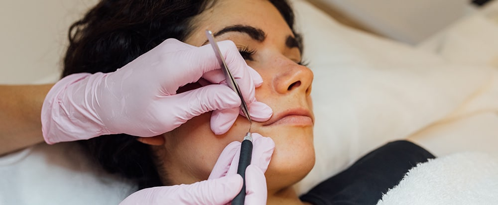 Electrodepilación facial 6