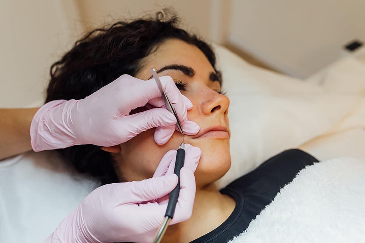 Electrodepilación facial 11