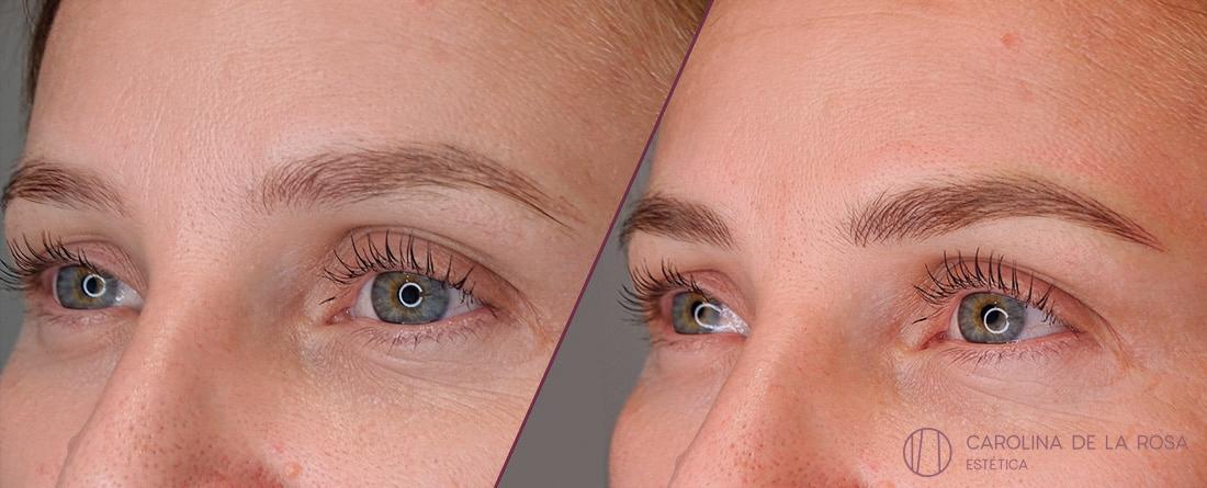 Micropigmentación de cejas 9