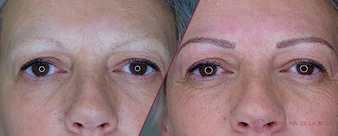 Micropigmentación de cejas 21