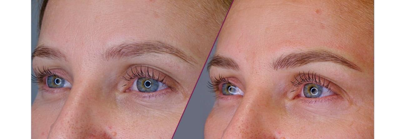 Micropigmentación de cejas 10