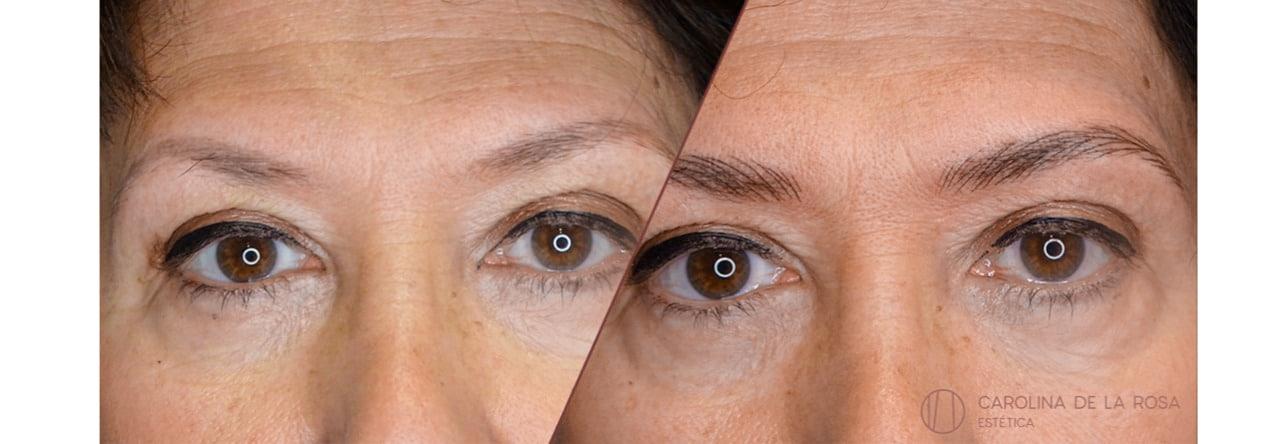 Micropigmentación de cejas 14