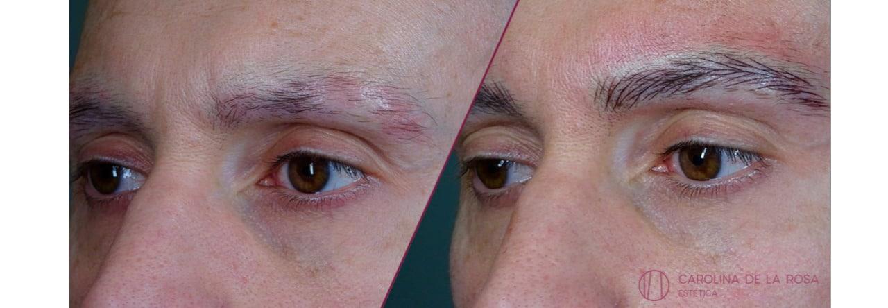 Micropigmentación de cejas 22