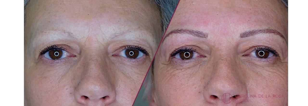 Micropigmentación de cejas 20