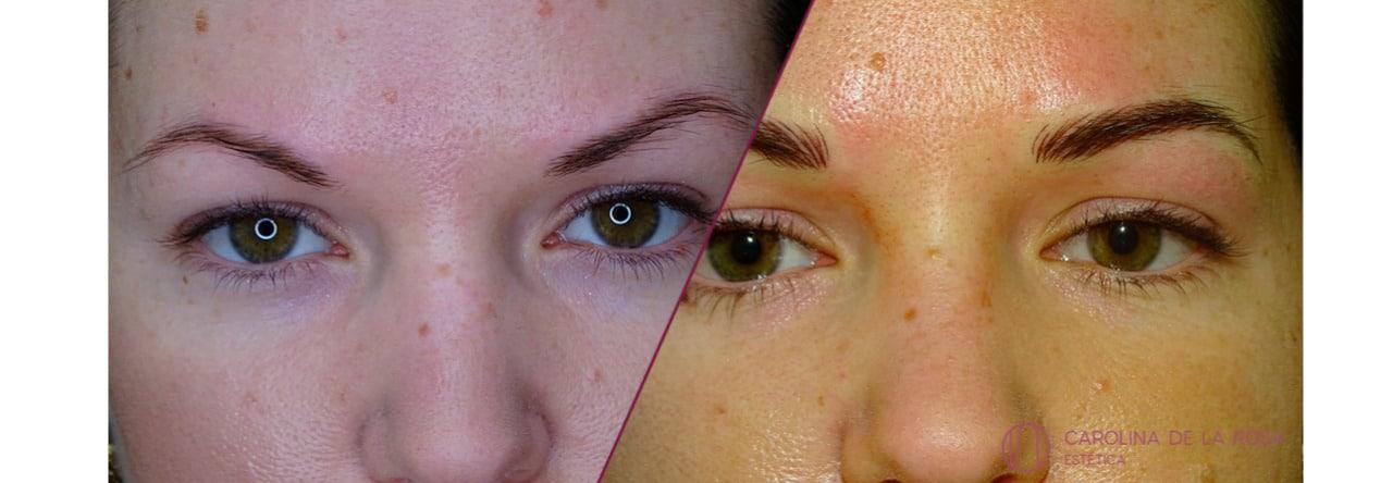 Micropigmentación de cejas 24