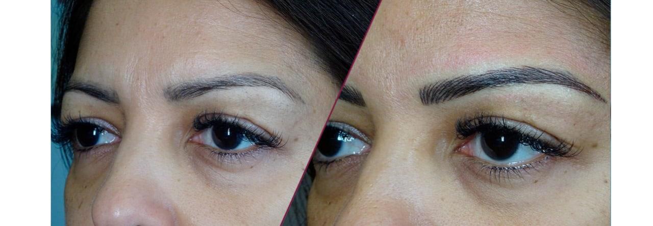Micropigmentación de cejas 26