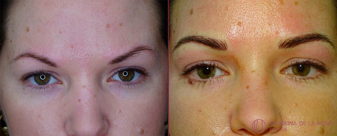 Micropigmentación de cejas 23