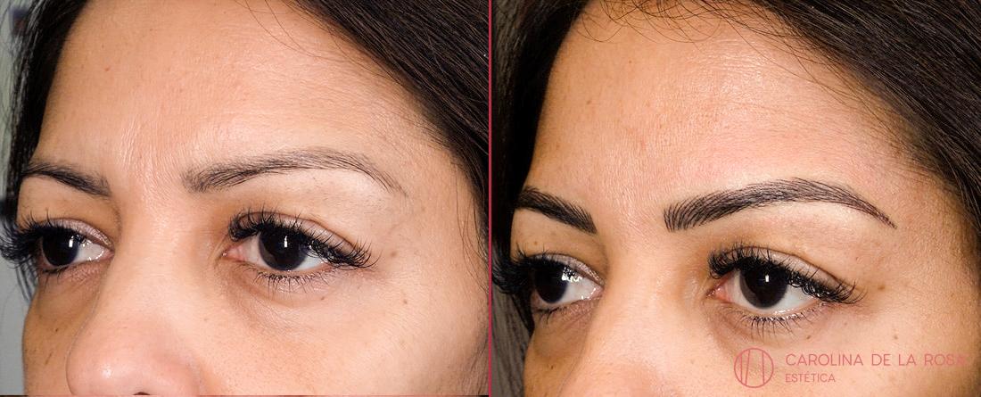 Micropigmentación de cejas 25